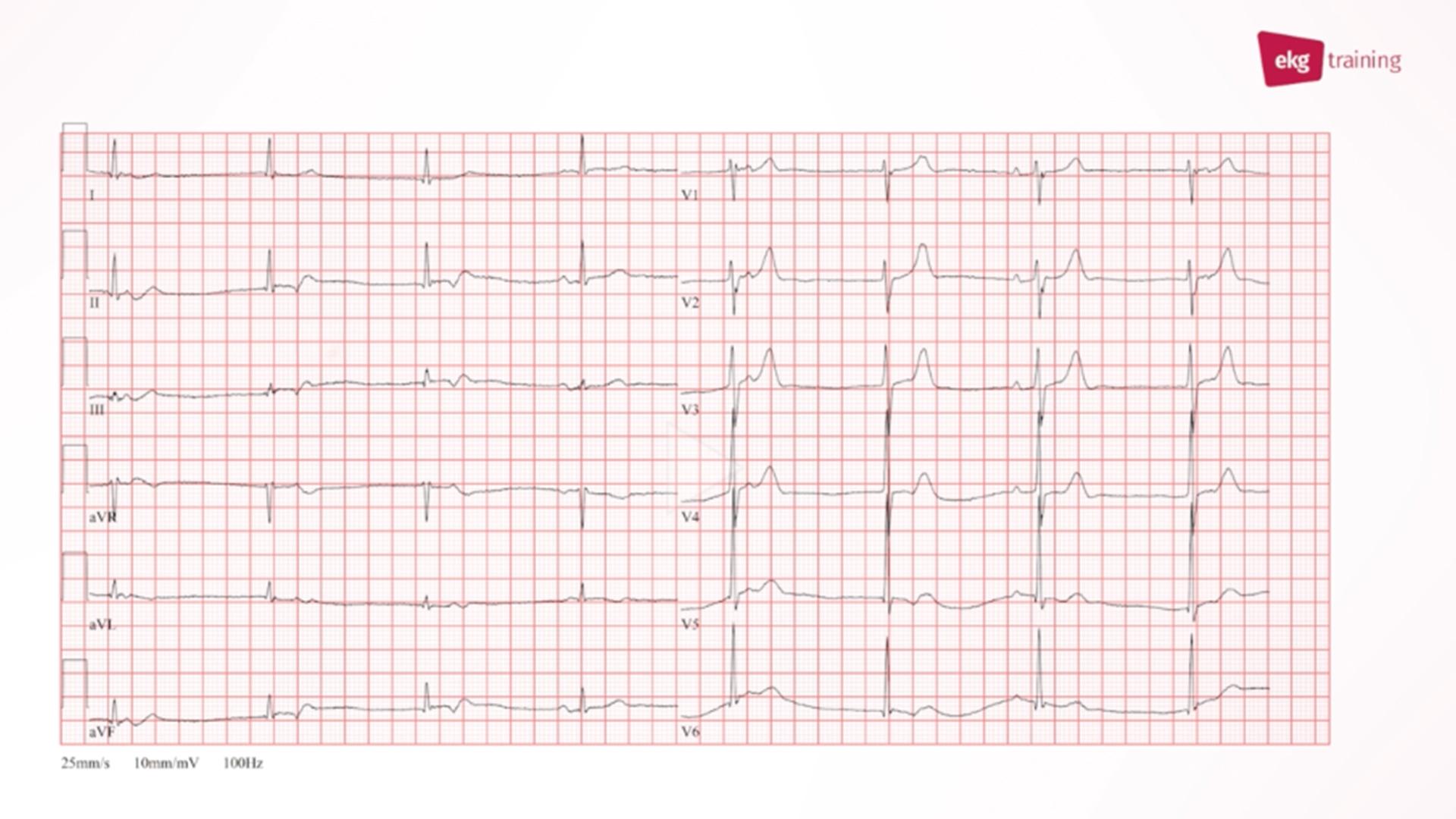 Aufnahme-EKG bei sportlichem 60-Jährigem vor Pulmonalvenenisolation