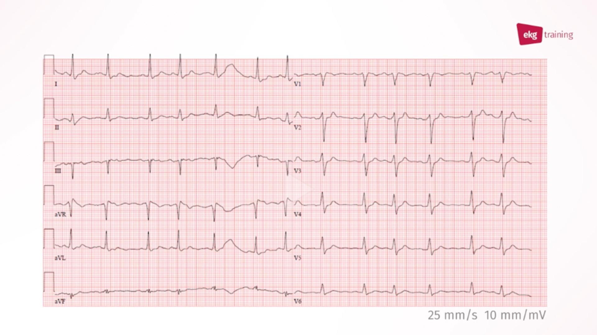 EKG-Diagnose bei Zustand nach Reanimation